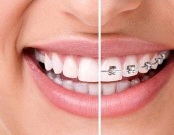 Лечение зубов в стоматологической клинике Ортодонт Люкс
