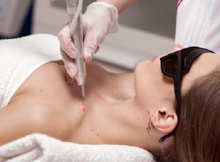 Как проводится удаление новообразований кожи. Какие противопоказания